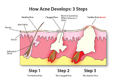 How Acne Developes:  3 Steps by Dr. David MacKoul